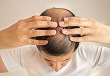 頭頂部への施術について