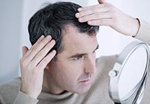 前髪薄毛の治療について