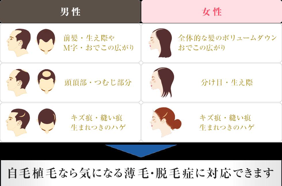 代表的な薄毛・脱毛箇所のご紹介